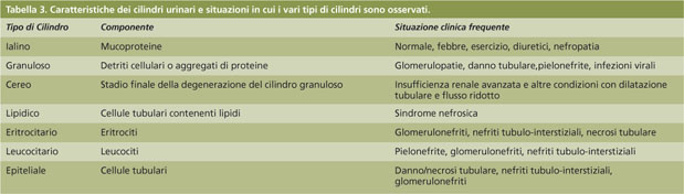 el te verde es bueno para el acido urico alimentos prohibidos por el acido urico que alimentos comer para eliminar el acido urico