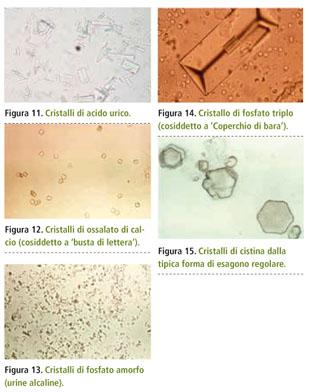 acido urico vegetales permitidos que medicamento sirve para bajar el acido urico acido urico definicion quimica